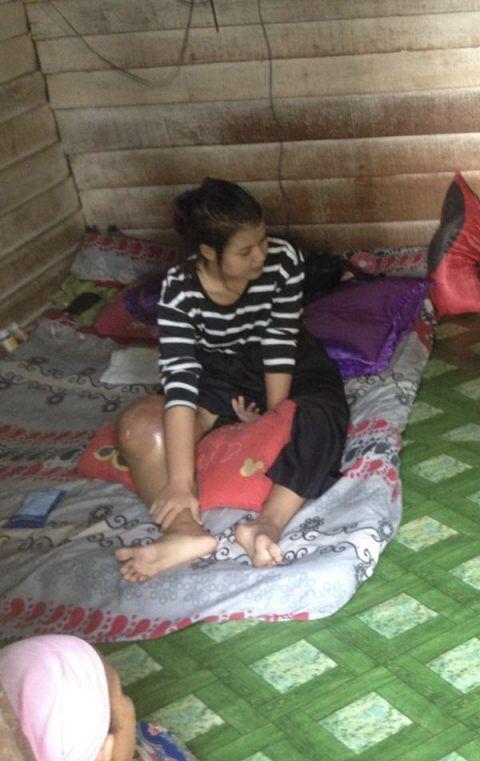 Pemprov Riau Siap Bantu Penanganan Penderita Tumor Warga Asal Kabupaten Kampar