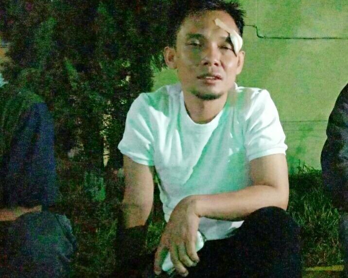 Jurnalis di Mesuji Dianiaya OTK